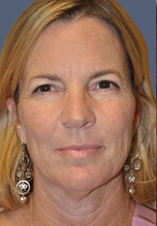 Facelift and Neck Lift 3114