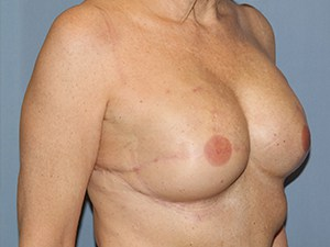 Breast Reconstruction 3340